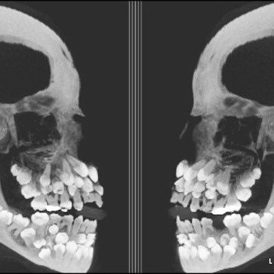 dental x ray in Commerce